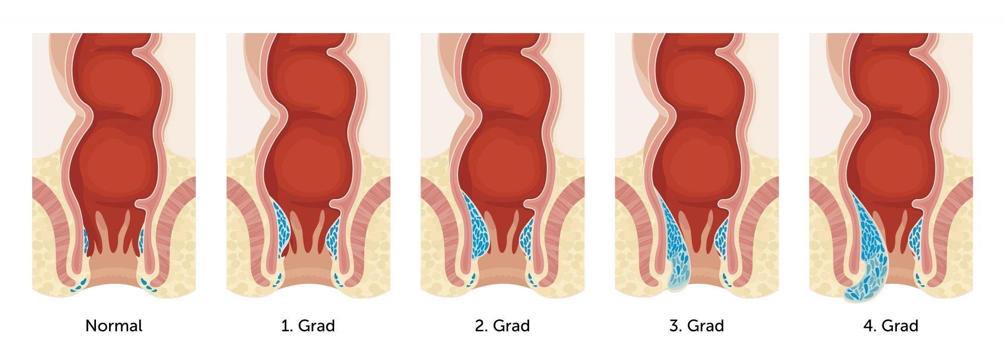 Illustration unterschiedliche Grade von Hämorrhoiden