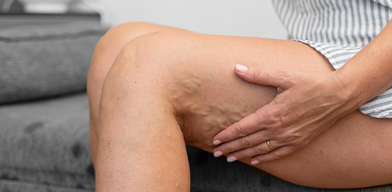 Das Bild zeigt die Beine einer sitzenden Frau. In ihren Kniekehlen sind Krampfadern ersichtlich.