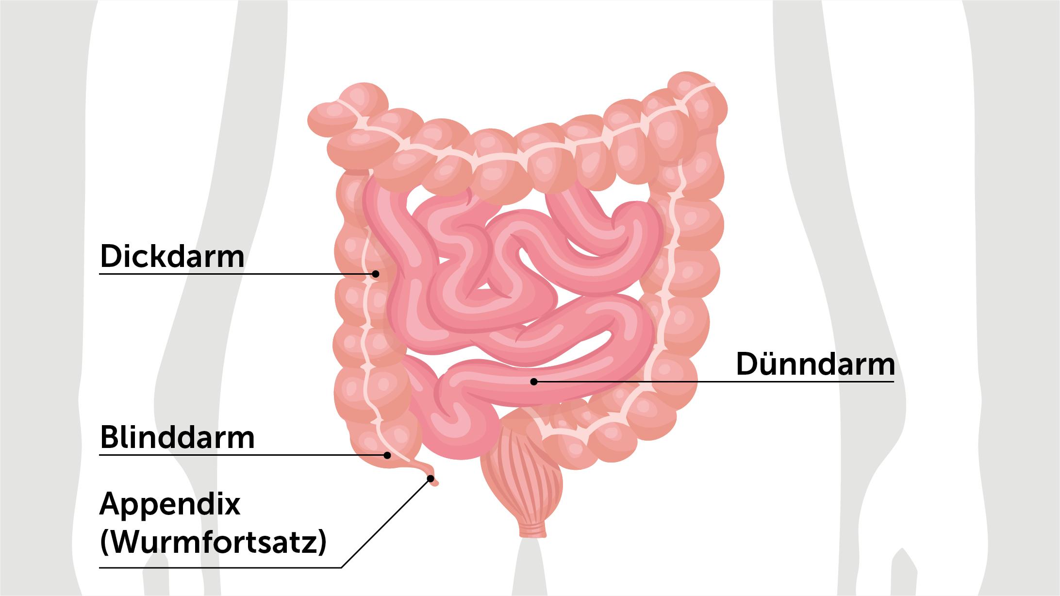 Appendizitis: Illustration von Dünndarm, Dickdarm, Appendix und Blinddarm.