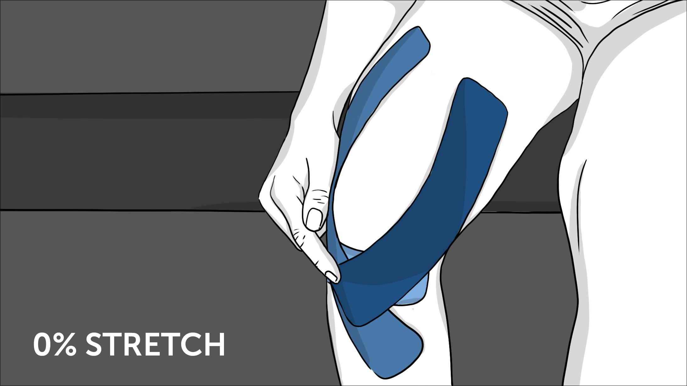 Illustration: So geht Tapen beim Knie - Schritt 6
