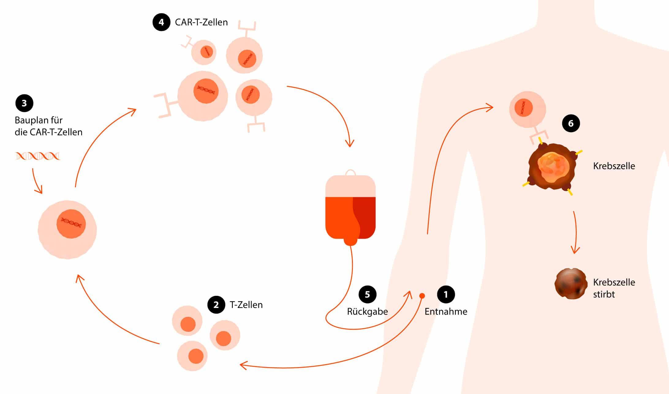 Die Infografik zeigt, wie die Immuntherapie funktioniert