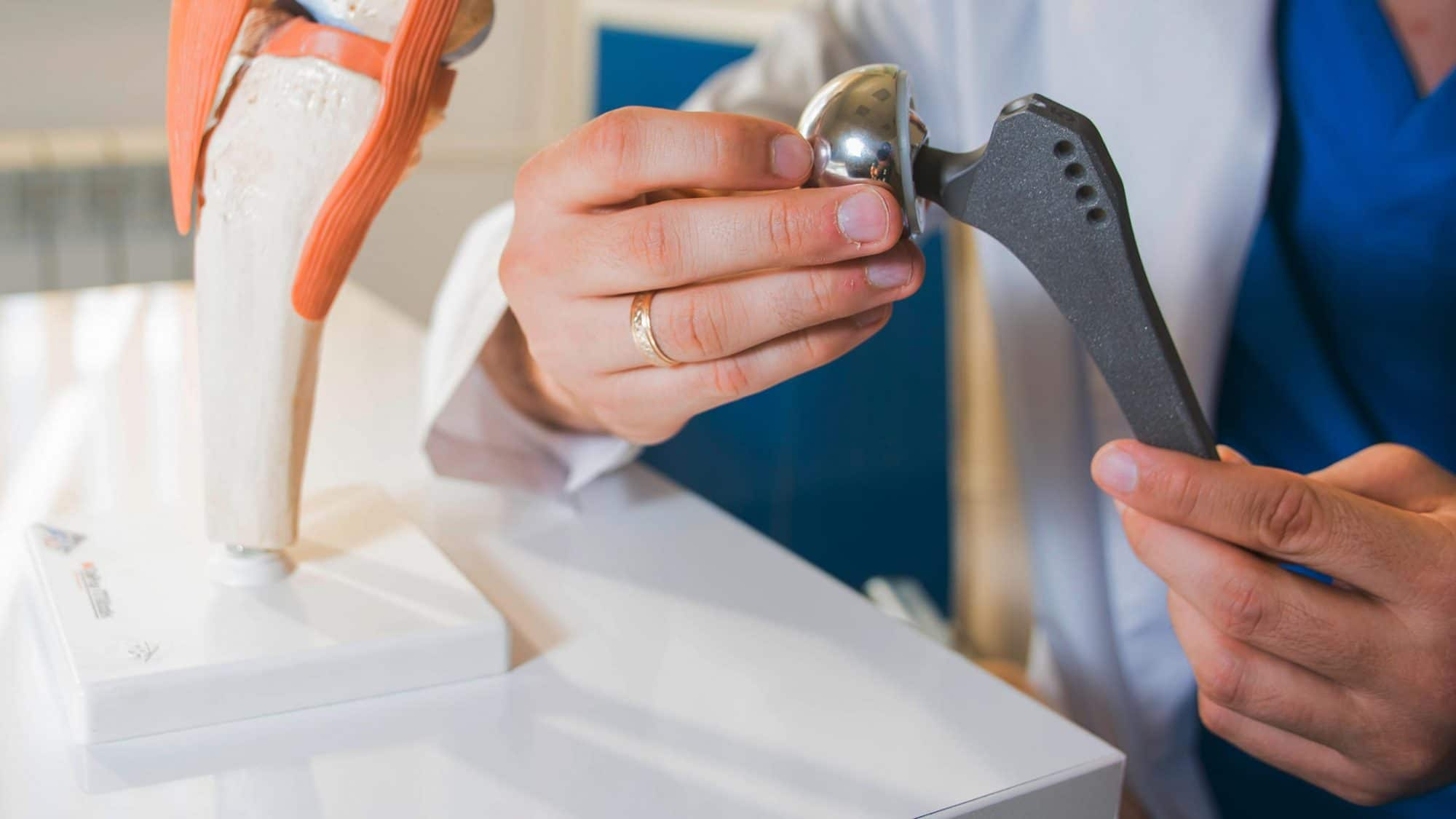 Ein Arzt hält ein künstliches Hüftgelenk.