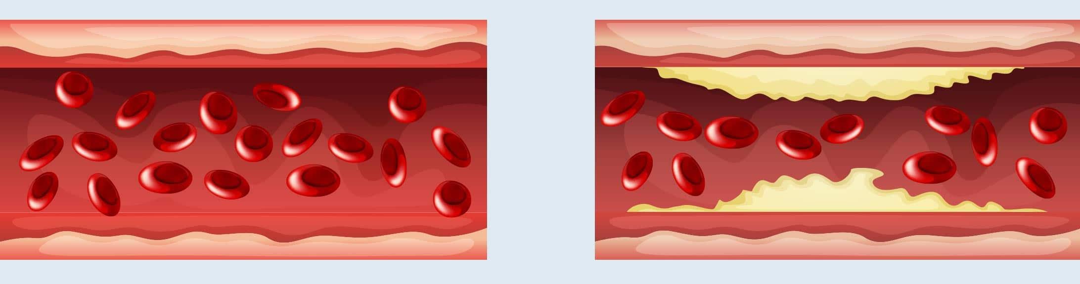 Abbildung zweier Blutgefässe; eines ohne Ablagerungen, das andere mit, wie bei PAVK.