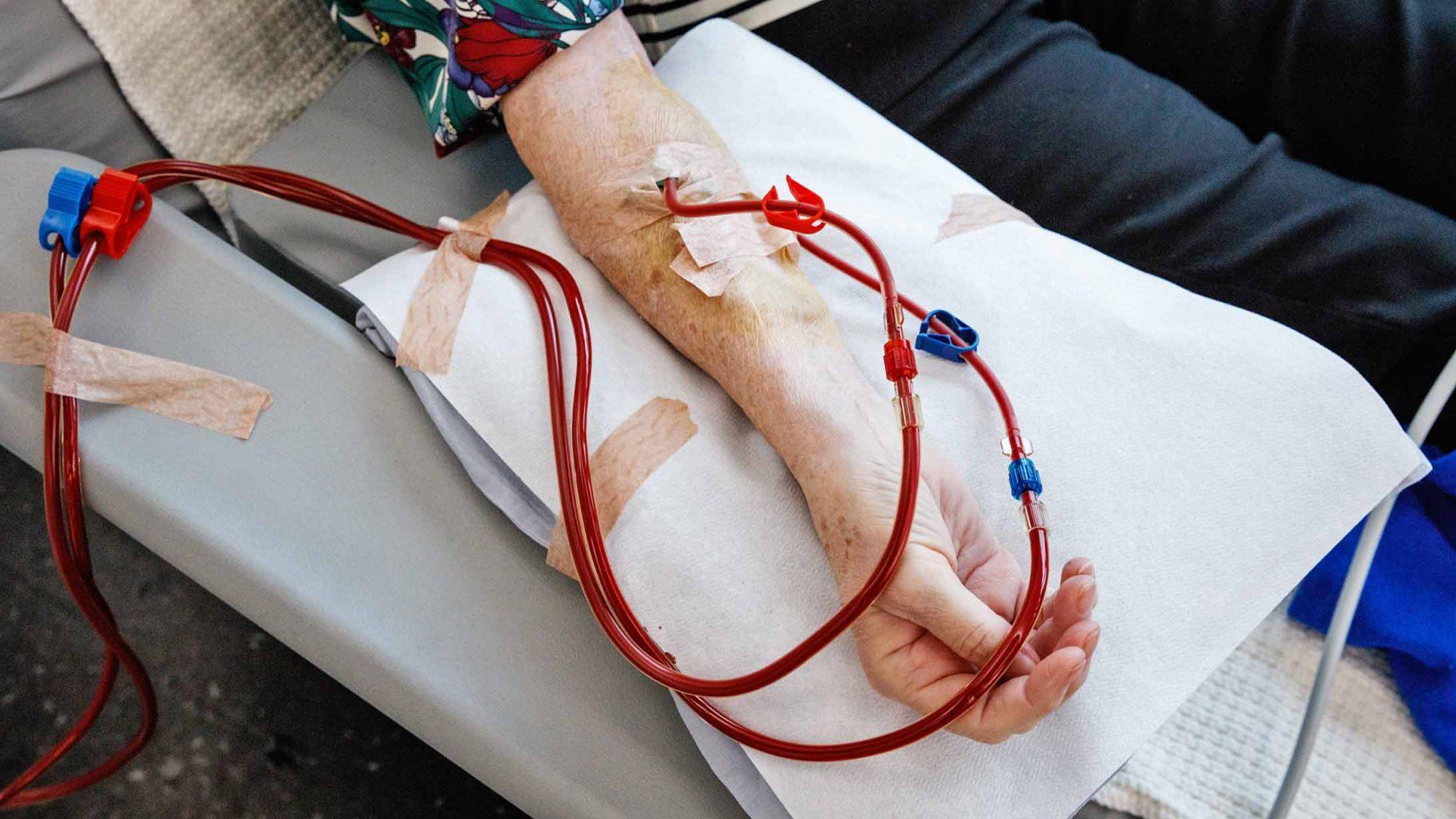 DIalyse: Das Blut der Patientin Ursula Amrein wird gereinigt.