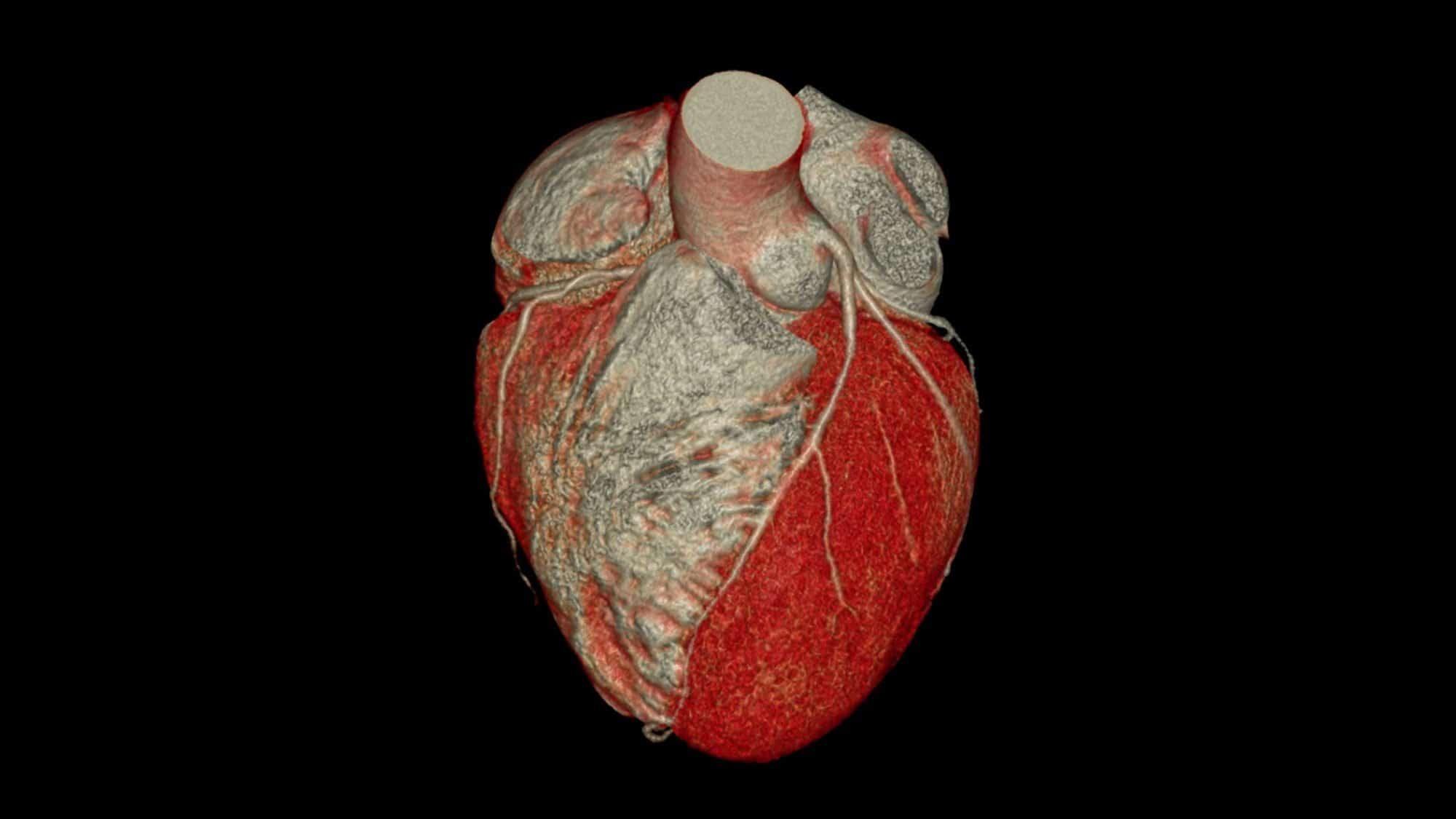 Radiologie: Bild eines 3-D Herz in der Computertomographie
