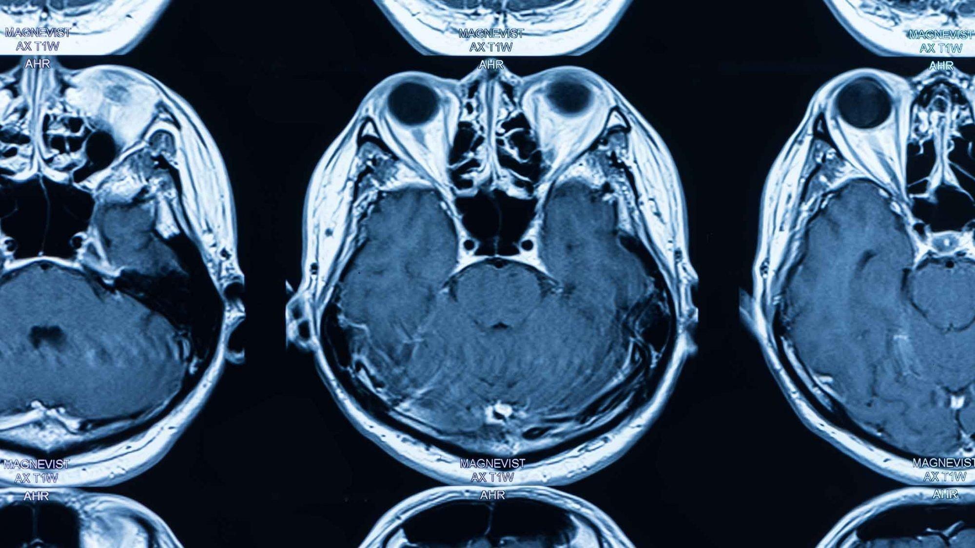 Radiologie: Bild eines Gehirns in der Magnetresonanztomographie (MRI)