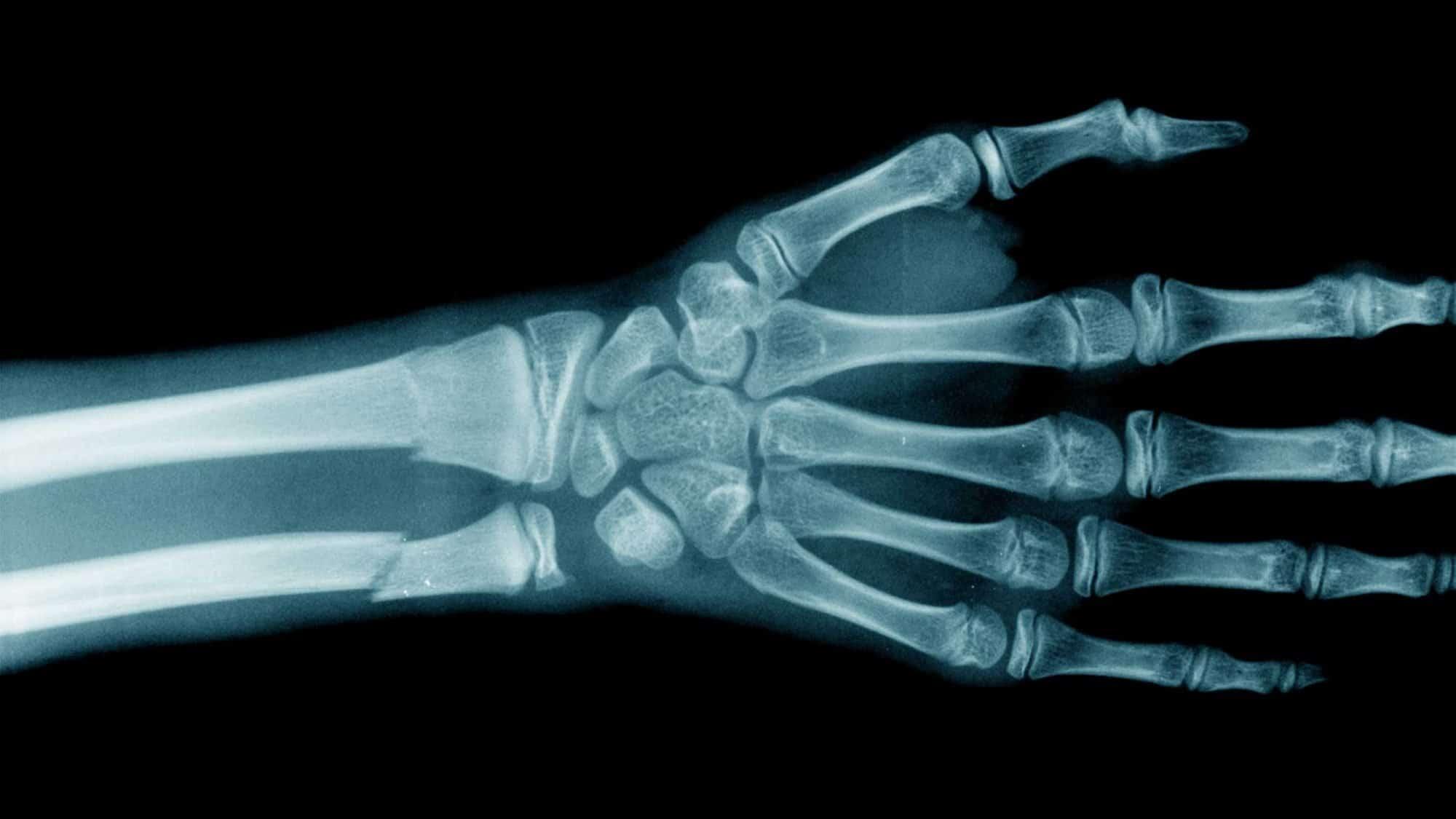 Radiologie: Bild einer geröntgte Hand