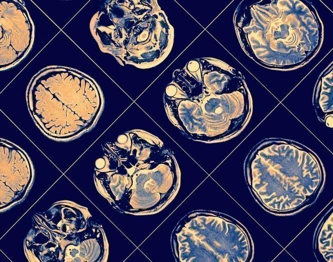 Schlaganfall: Röntgenbilder des Gehirns