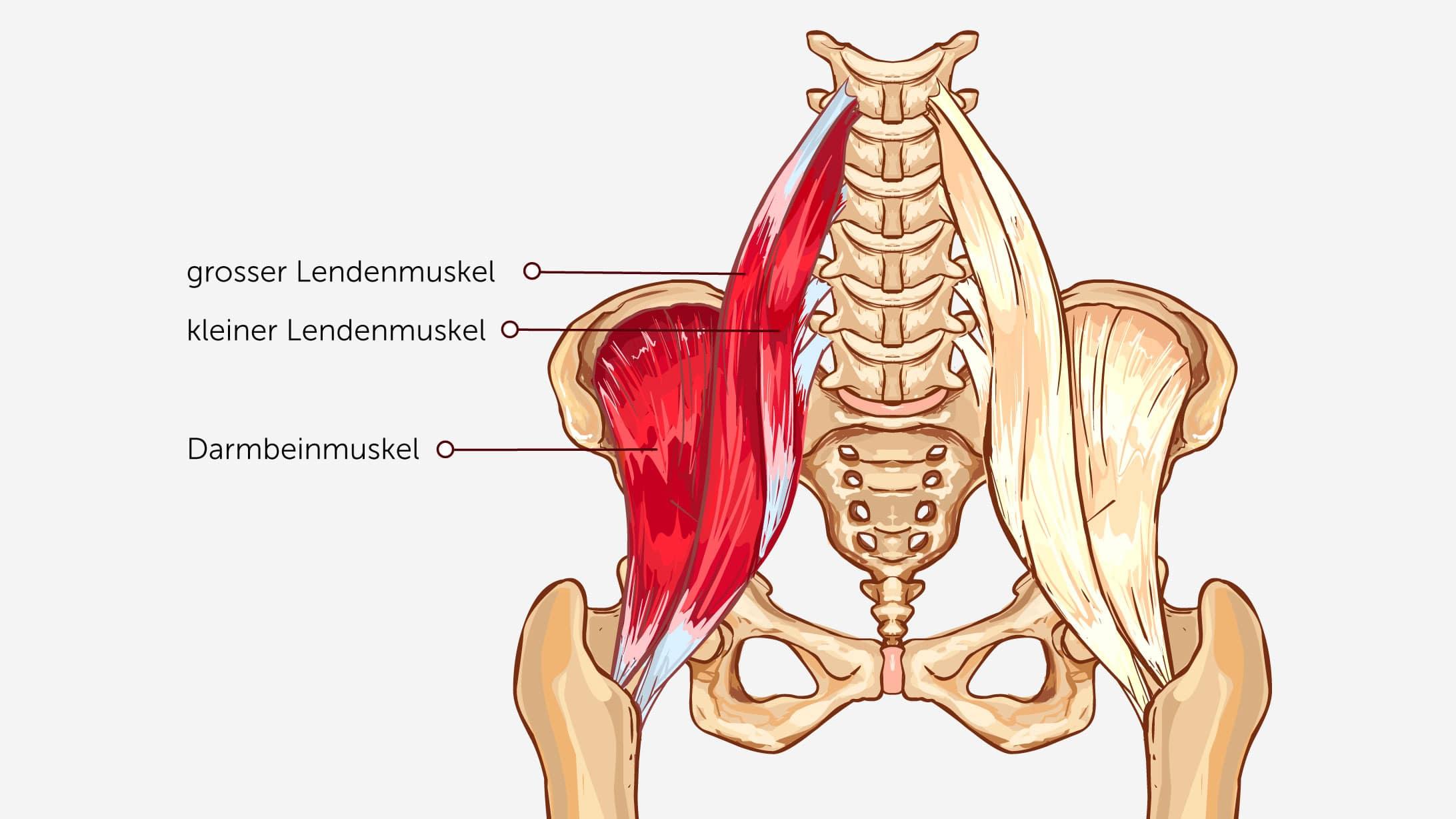 Illustration eines Hüftgelenks. Hervorgehoben sind der grosse Lendenmuskel, der kleine Lendenmuskel sowie der Darmbeinmuskel. Die Sehne dieser Muskeln löst das Knacken in der Hüfte aus.