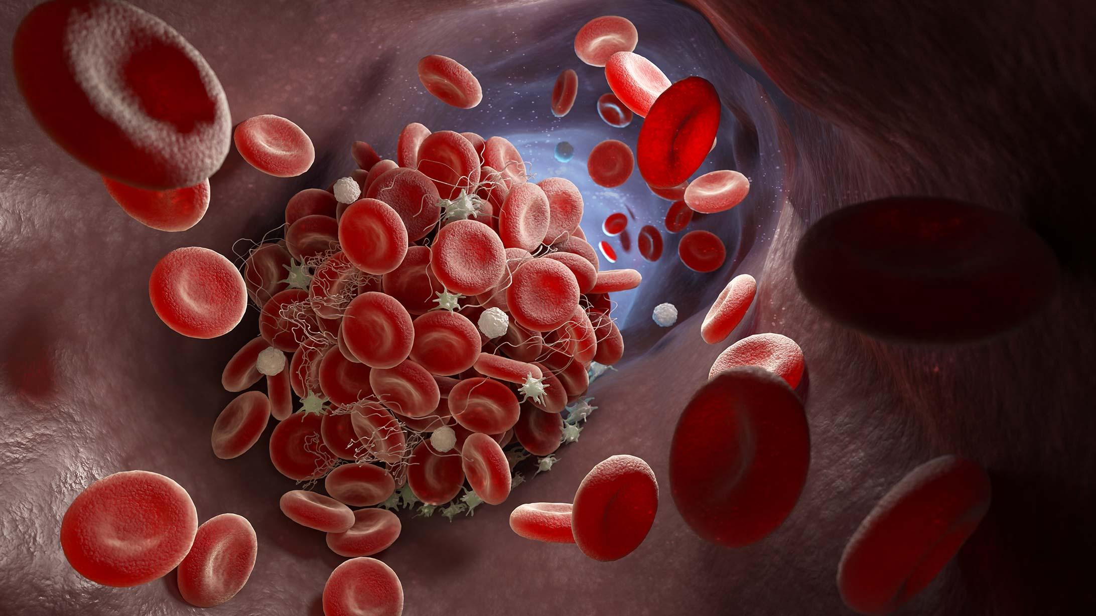 Illustration von Thrombose