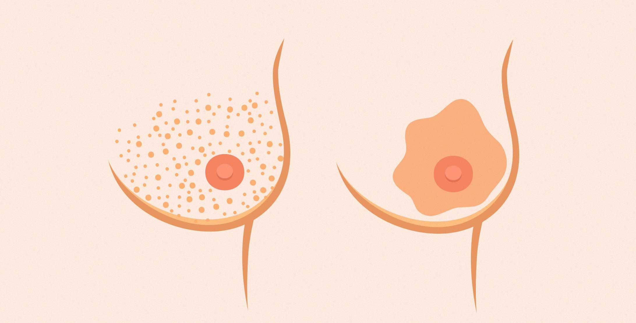 Illustration einer weiblichen Brust mit Hautveränderungen