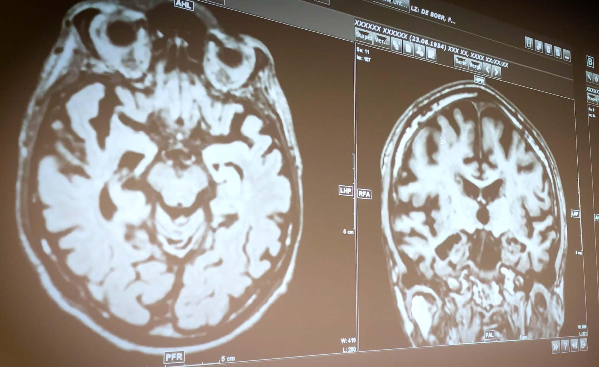 Scans eines Gehirns