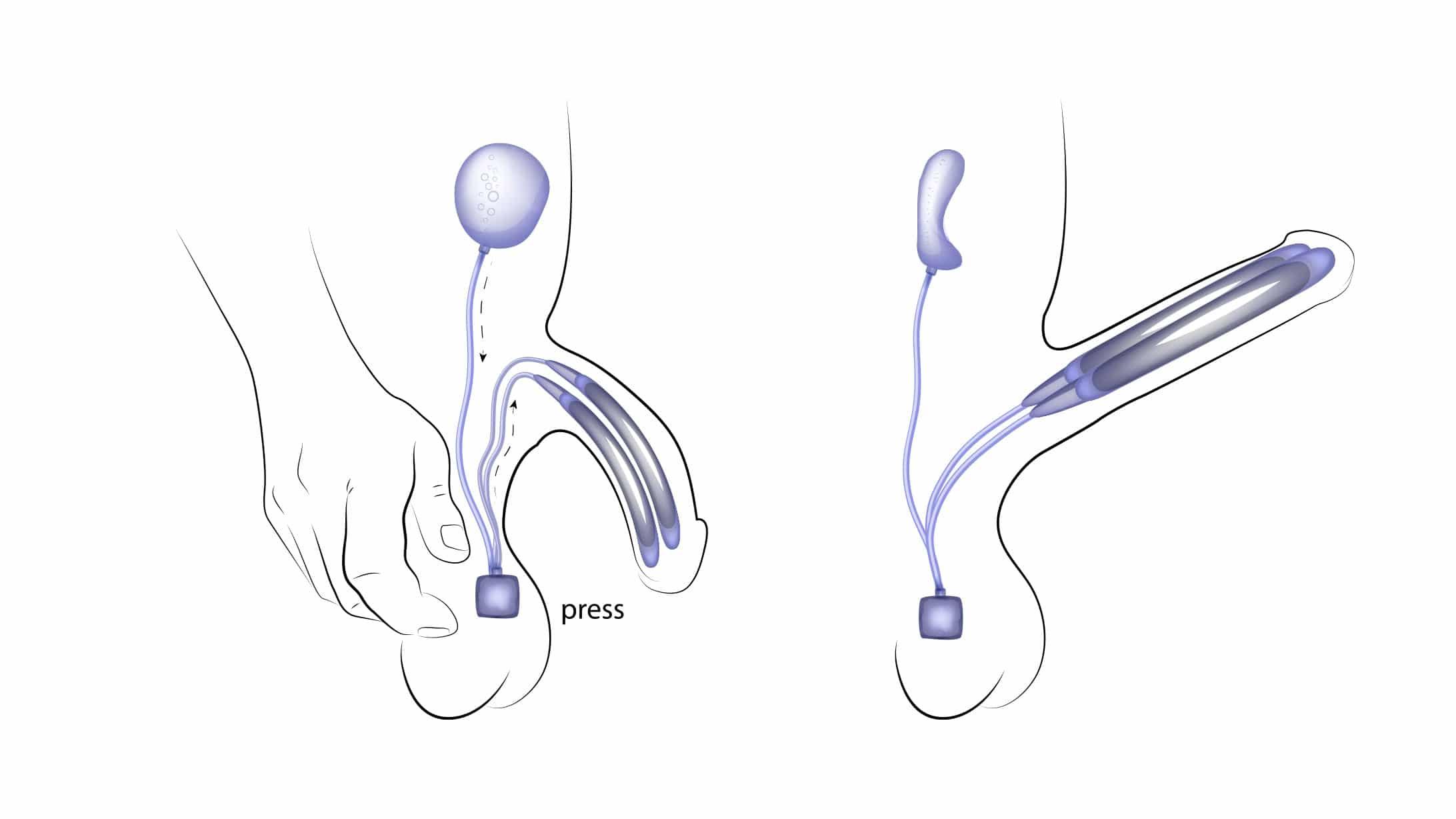 Illustration eines Schwellkörperimplantats, dass bei einer Erektionsstörung eingesetzt werden kann.