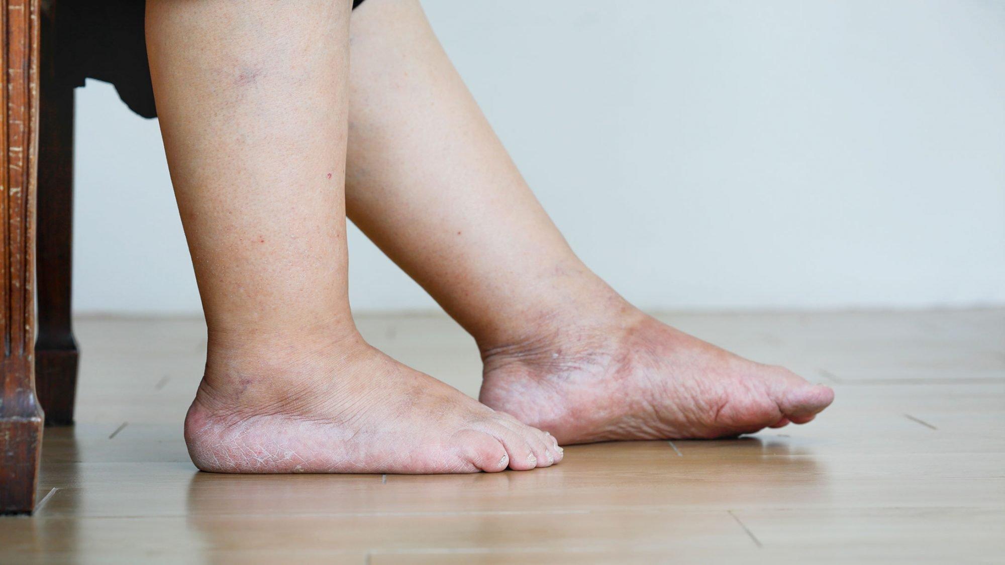 Bild von geschwollenen, schweren Beinen.