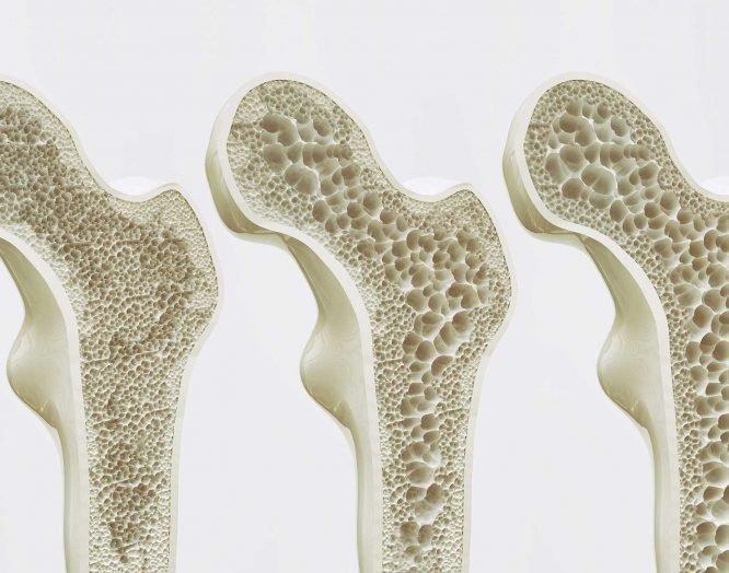Die verschiedenen Stadien der Osteporose