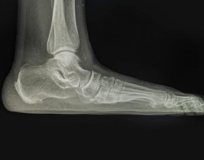 Seitliche Röntgen-Aufnahme eines Fusses mit Knick-Senkfuss.