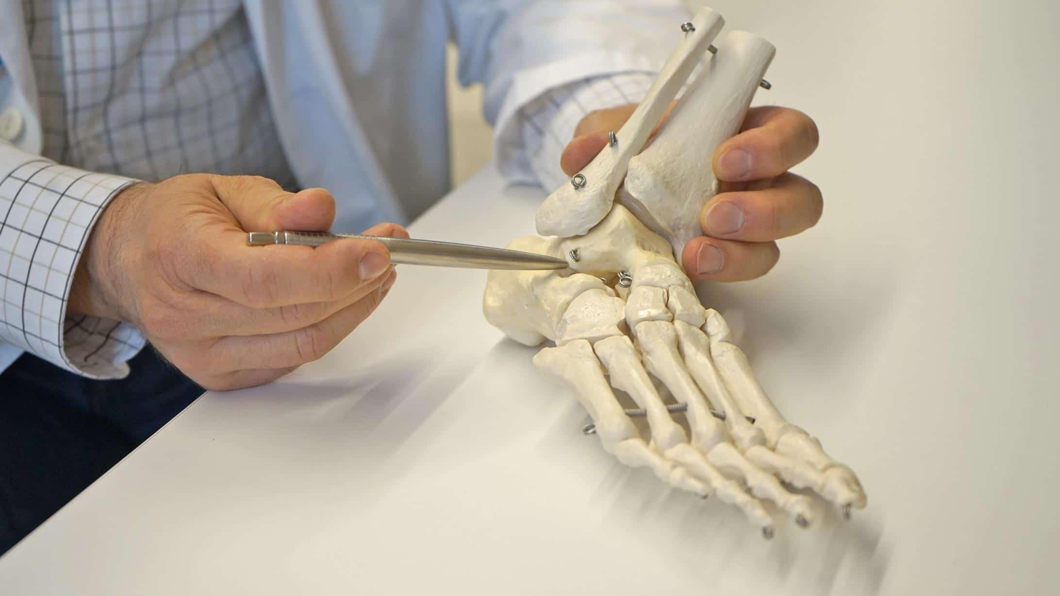 Fusschirurg Urs Neurauter zeigt ein Modell eines Fusses.