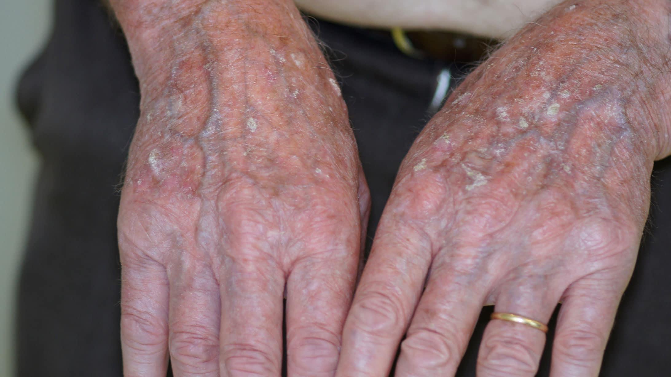 Aktinische Keratose auf dem Handrücken.