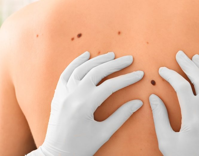 Hautkrebs: Untersuchung von Muttermalen