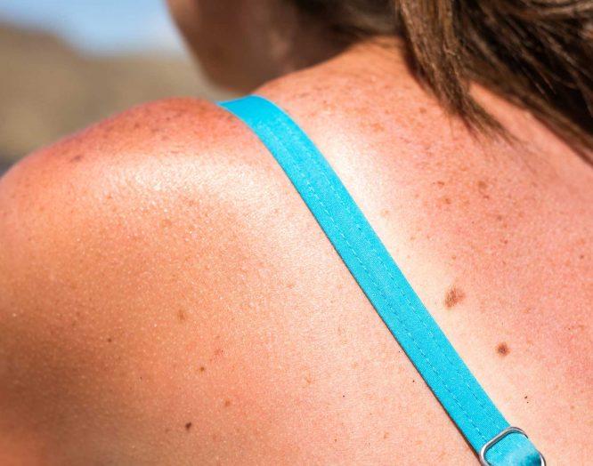 Rücken einer Frau mit Sonnenbrand