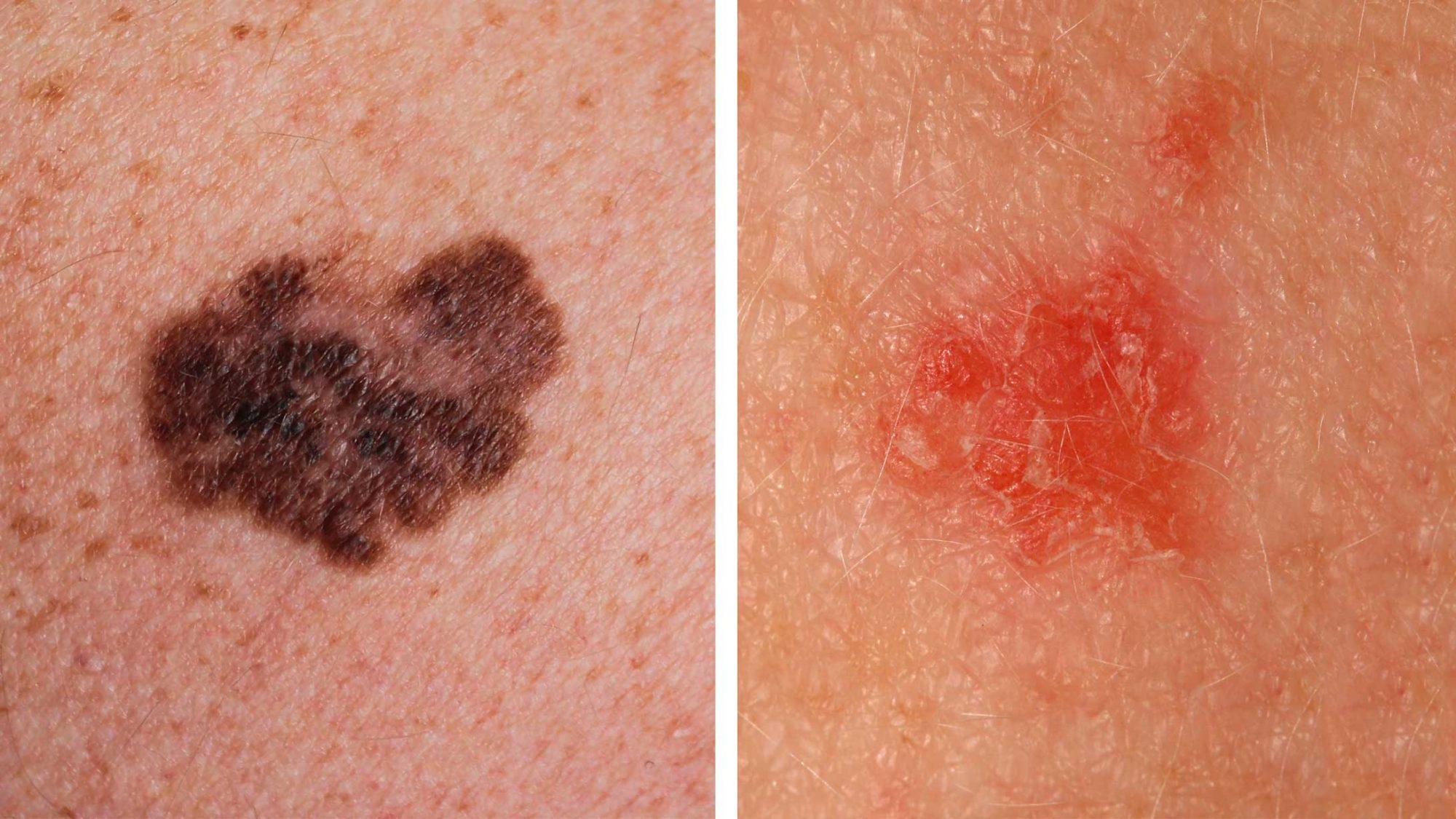 Hautkrebs: Schwarz-weisse Gefahr des Sonnenbadens - KSB-Blog