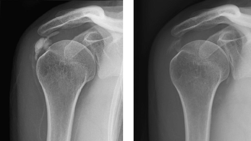 Röntgenaufnahme einer Kalkschulter vor und nach einem Needling