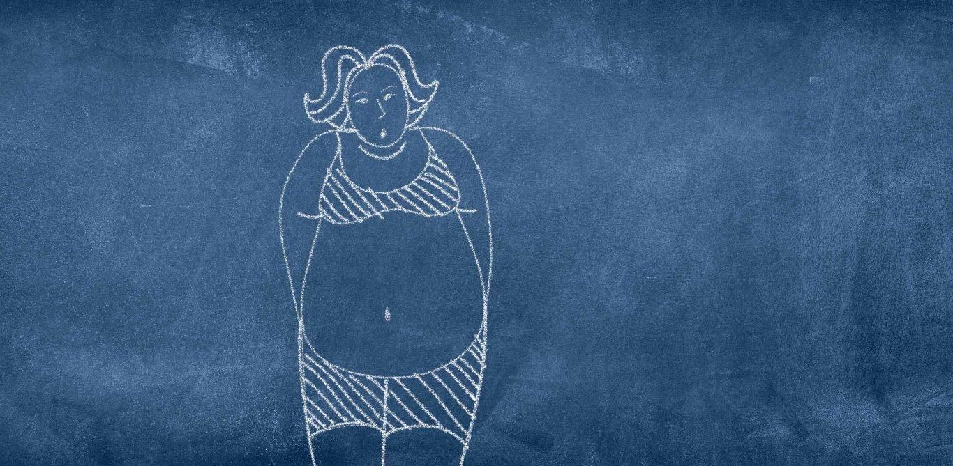 Magenbypass: Illustration Übergewicht