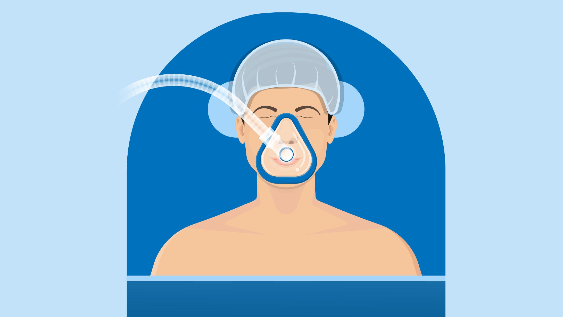 Gezeichnete Illustration: jemand liegt mit einer Atemmaske in Narkose im Operationssaal.