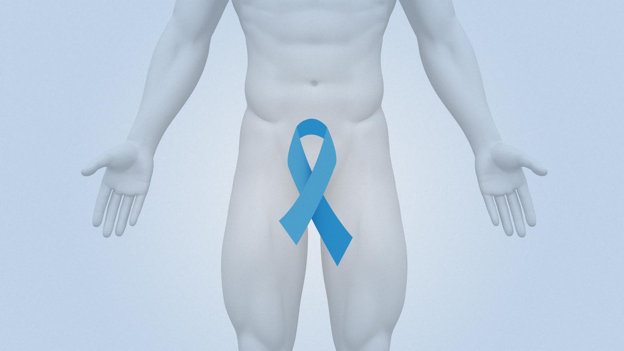 Symbolbild eines Mannes mit der Krebsschleife