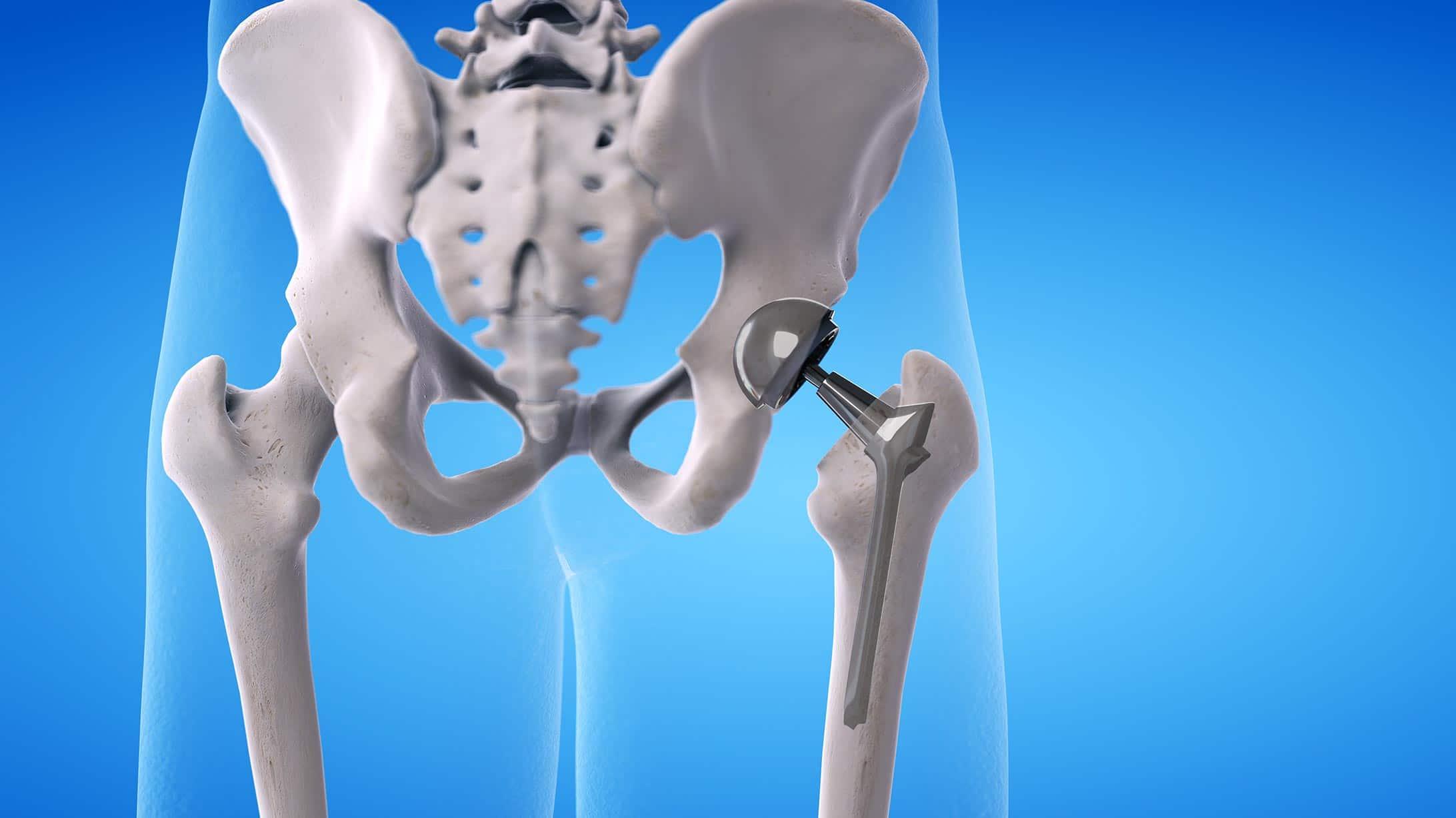 Ein Modell einer eingesetzten künstlichen Hüfte im Skelett