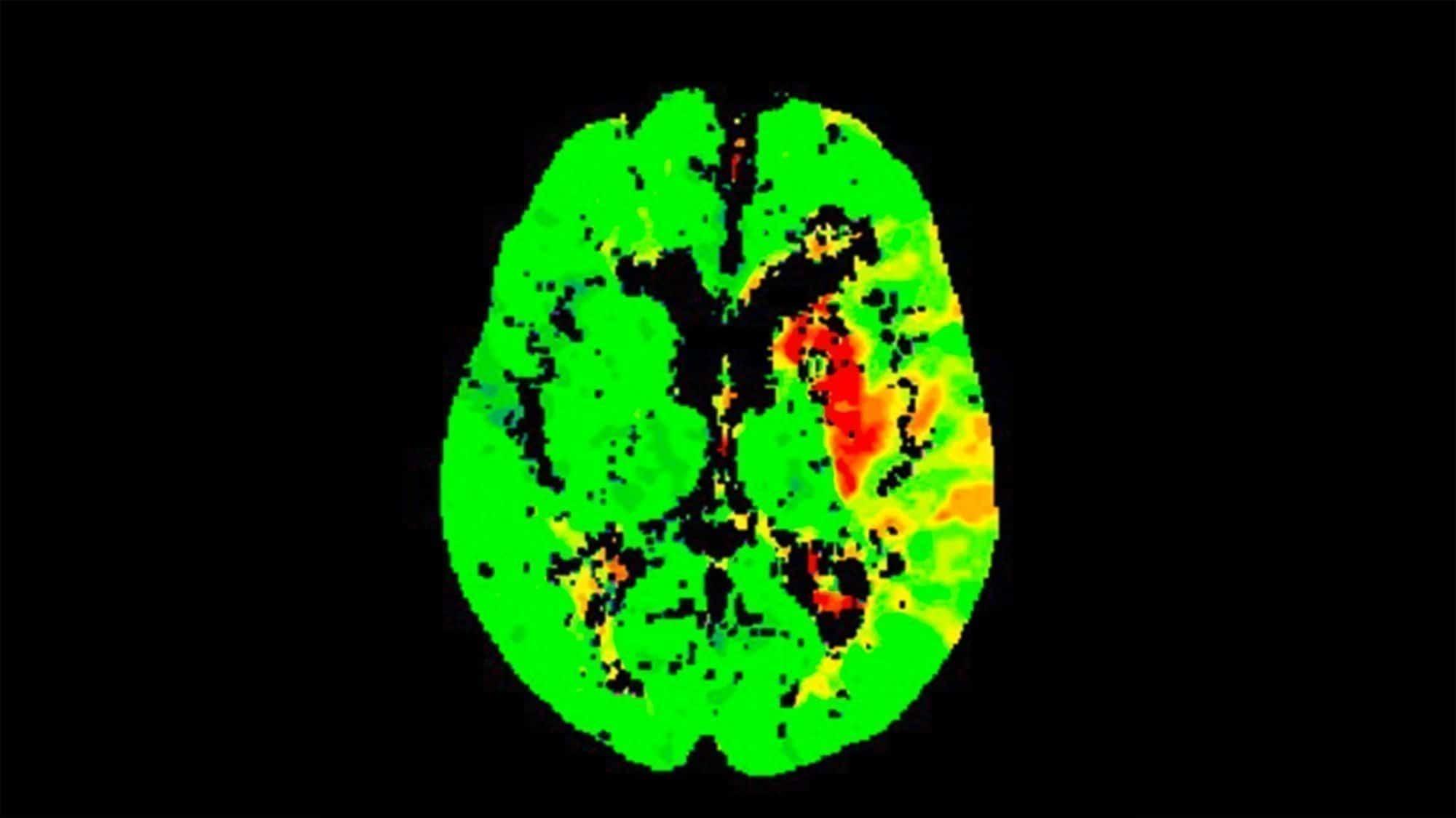 CT von einem Gehirn kurz nach einem Schlaganfall