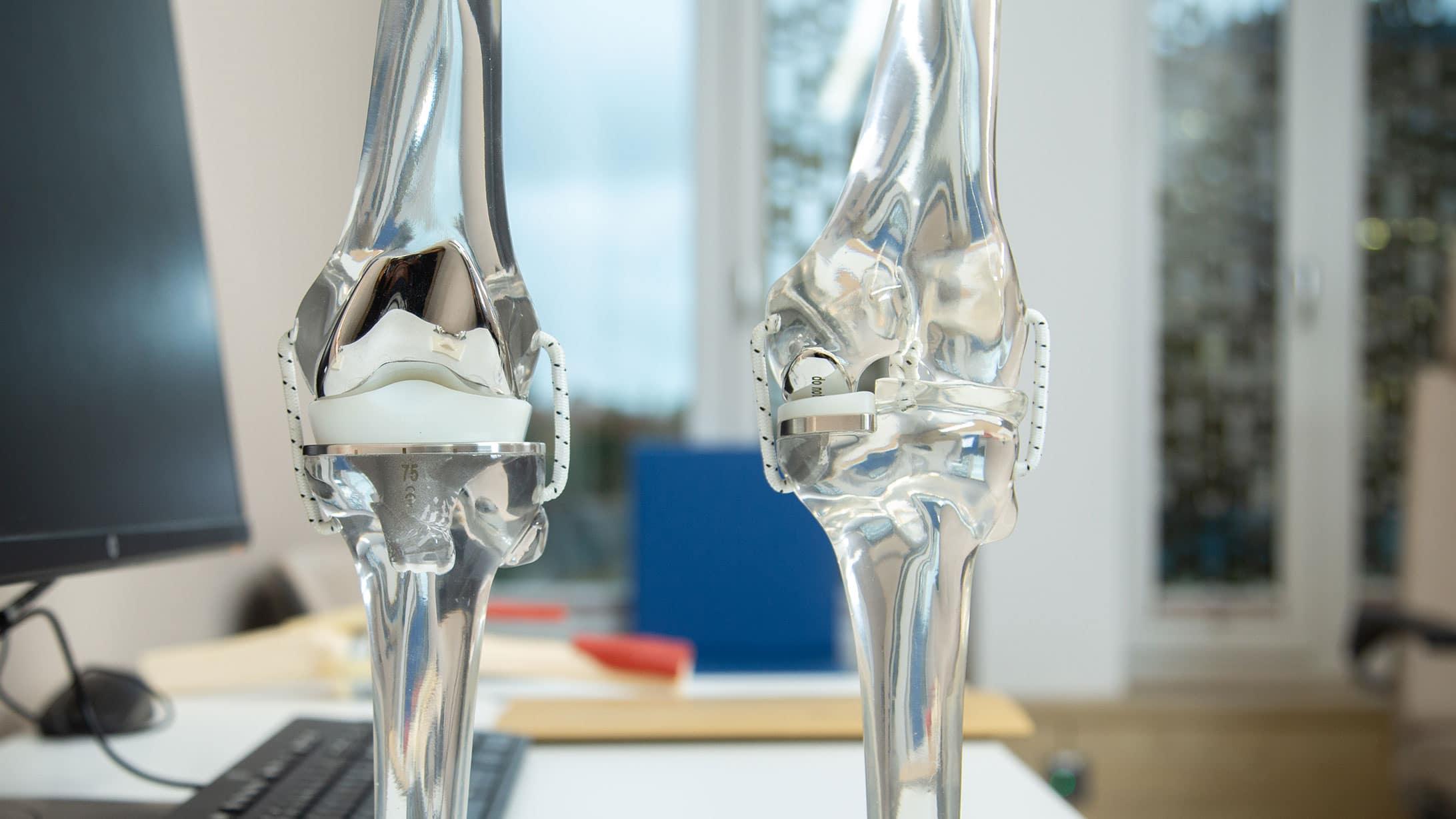 Abbildung zweier Knieprothesen
