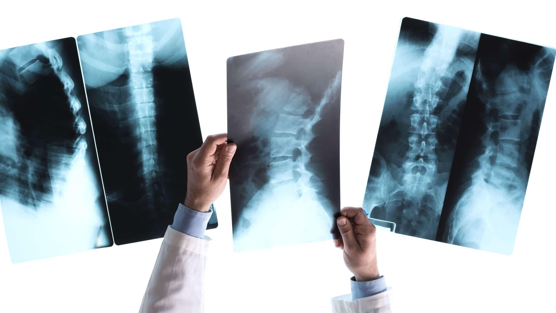 Röntgenbild der Wirbelsäule
