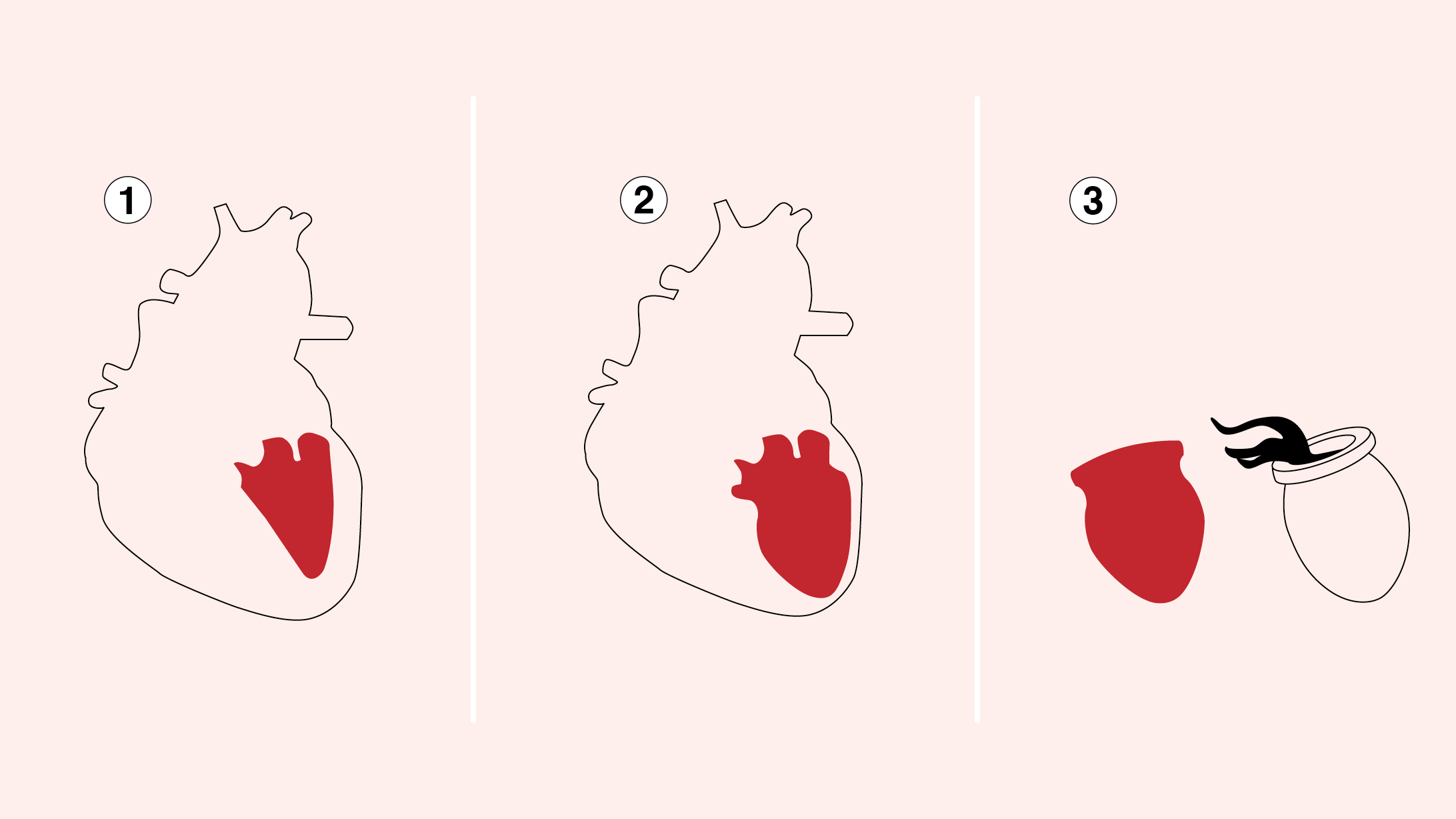Herzinfarkt bei Frauen: Das Tako-Tsubo-Syndrom
