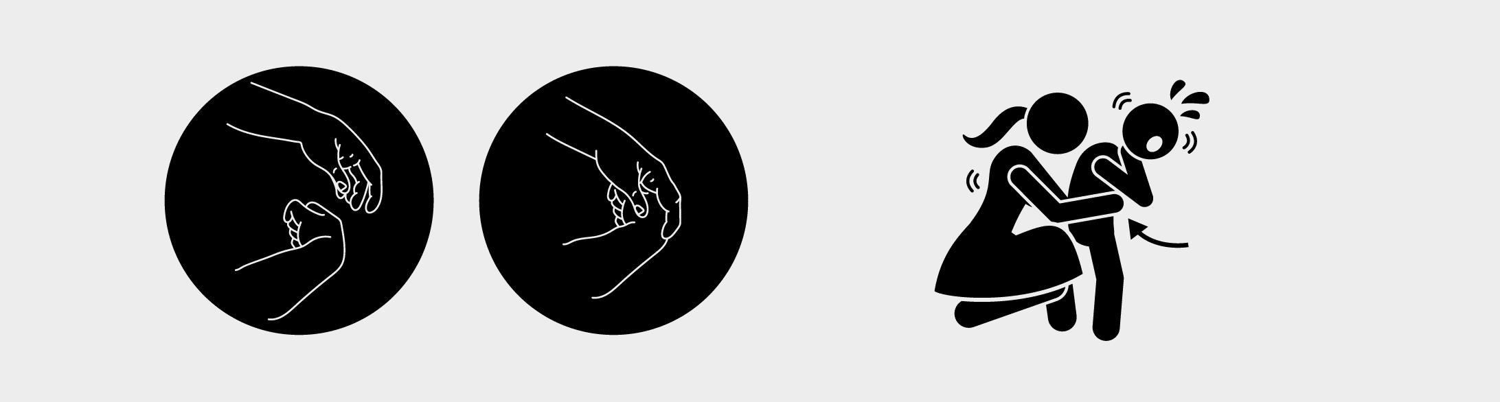 Illustration des Griffs Heimlich-Manöver, der verschluckte Gegenstände aus den Atemwegen katapultieren soll.