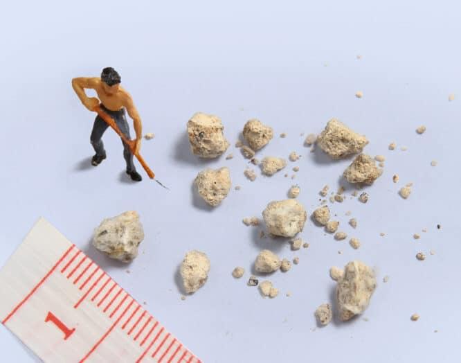 Mehrere Nierensteine liegen neben einem Massband und einer kleine Plastikfigur.