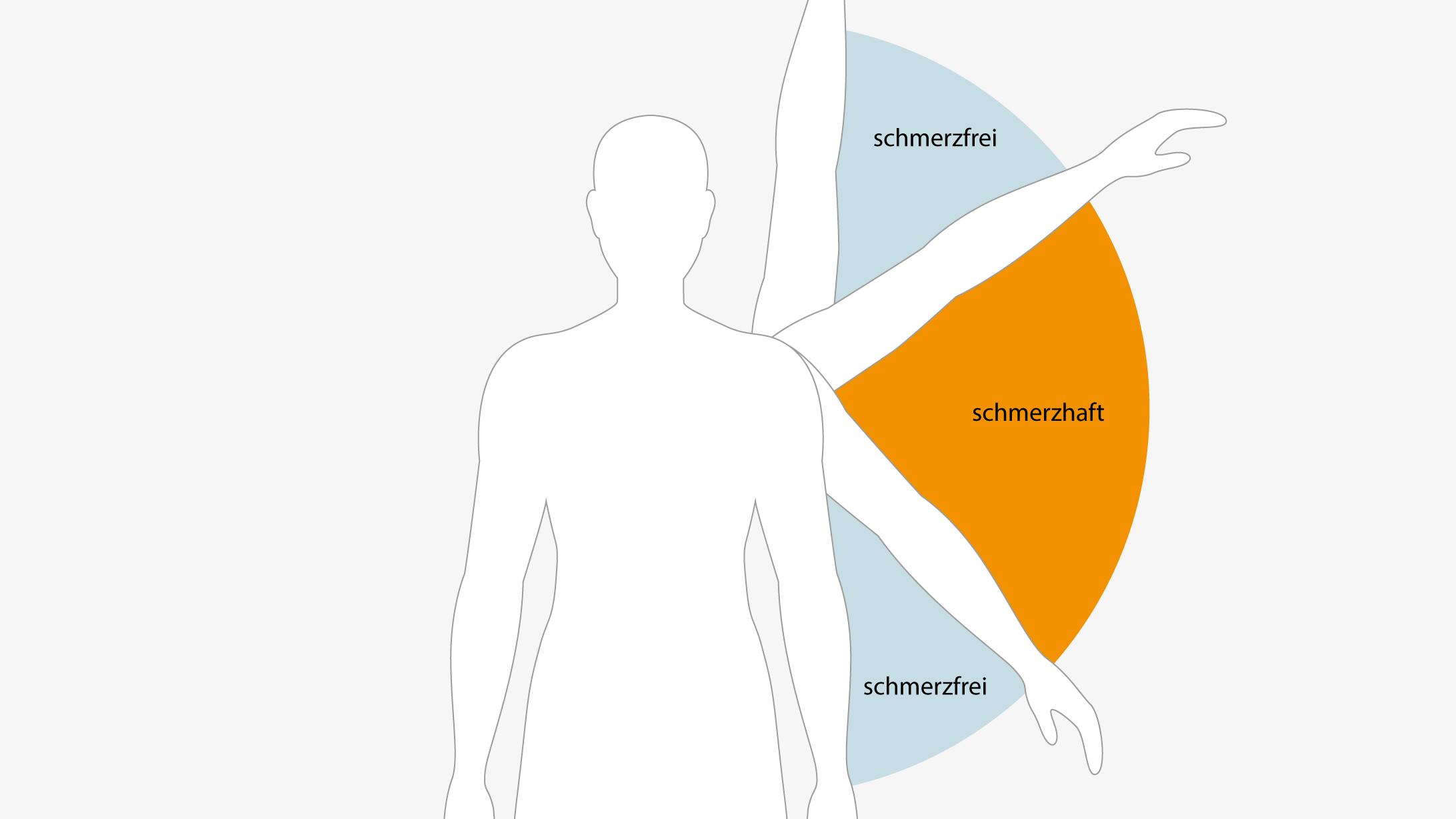 Die Illustration zeigt den sogenannten painful arc, der einen Hinweis auf ein Schulterimpingement geben kann.