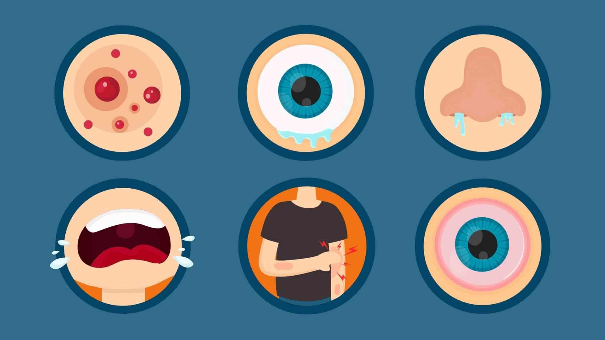 Symptome einer Allergie können Ausschläge, tränende Augen, laufende Nasen, Niessen, rote Augen oder beissende Haut sein