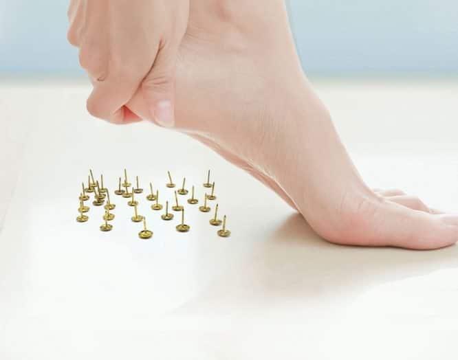 Ferensporn: durch einen Knochenauswuschs schmerzt die Ferse bei jedem Schritt