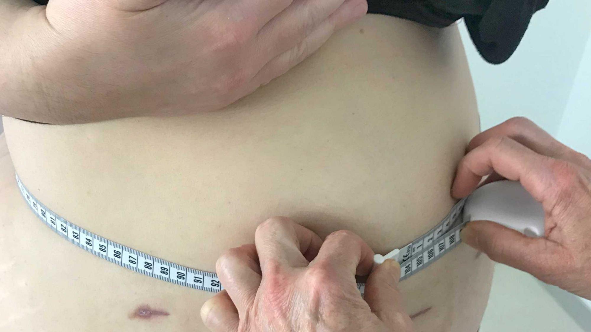 Fabian Deichsel misst den Bauchumfang der Patientin.